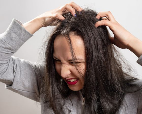 problem z łupieżem swędzenie głowy